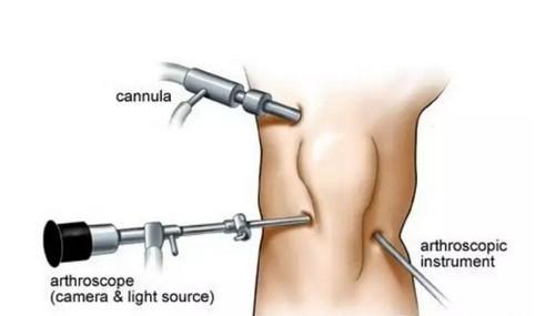 手术步骤笔记图片