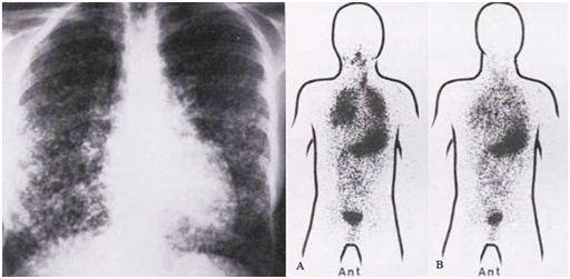 颈部淋巴结明显缩小或消失,3次治疗每次相隔半年)-为啥甲癌术后
